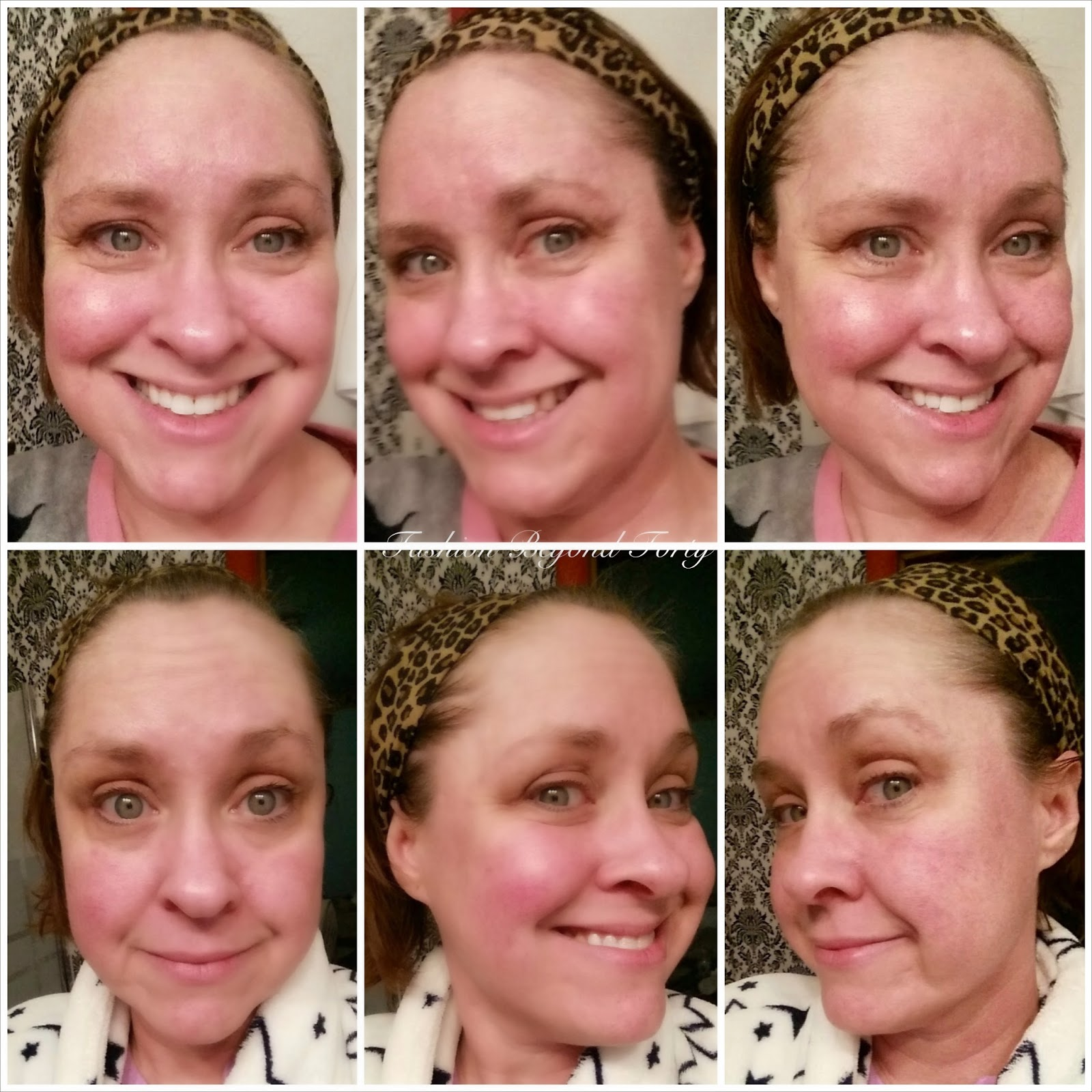 Day one and Two with Resurrect Anti Aging Moisturizer Matrixyl 3000®