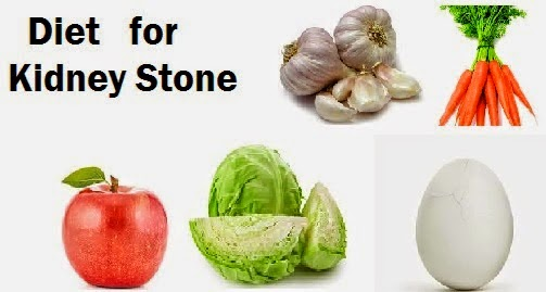 Natural remedy for kidney stones - 5 Secrets Kidney Stone Doctors do not tell you