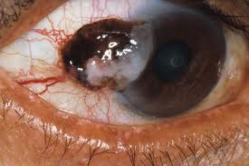 Eye Cancer Picture