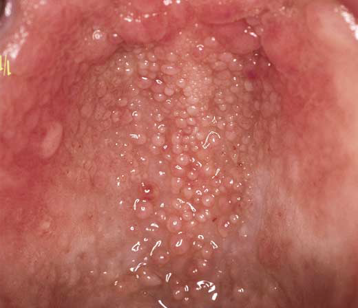how to clear yeast infection in mouth