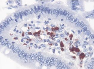 Hình 4: Phát hiện PCV2 (mầu đỏ-nâu) bằng lai in situ (HIS) trên tiêu bản tổ chức mào ruột non (X400, cliché LDA 22)