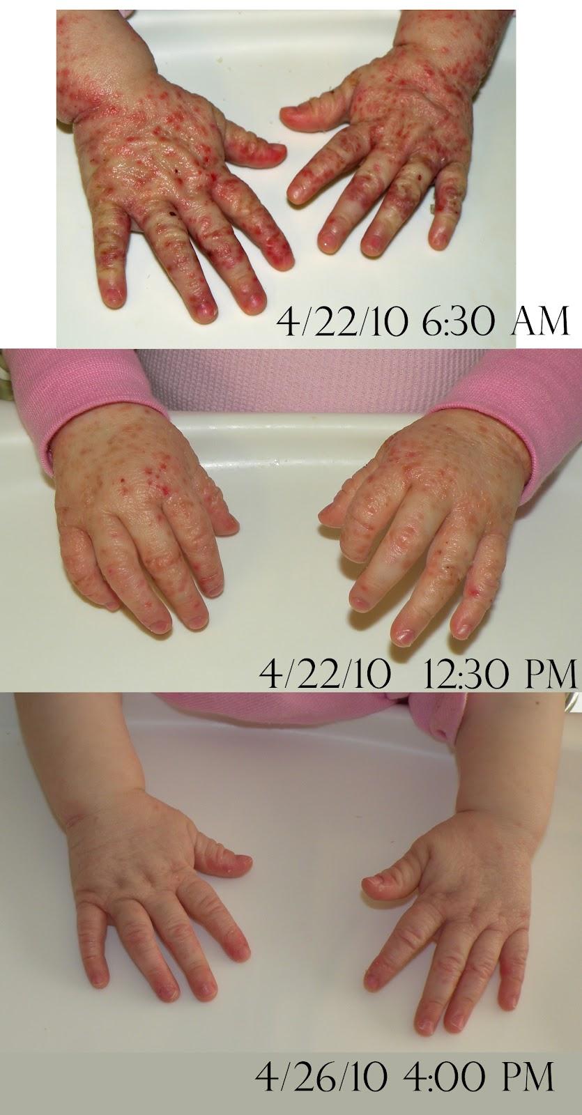 Come togliere la psoriasi con unghie