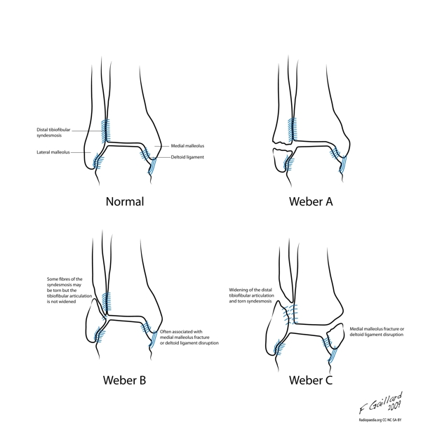 Radial Head Fracture Classification