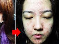 Waspadai, Gonta Ganti Kosmetik Sebabkan Alergi!