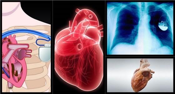 Генетический кардиостимулятор без стимулятора, электродов и проводов