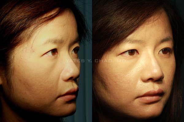 玻尿酸 水微晶 微晶瓷 Hydermis Radiesse 隆鼻