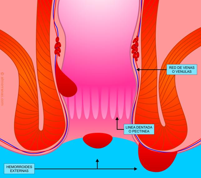 Hemorroides mixtas