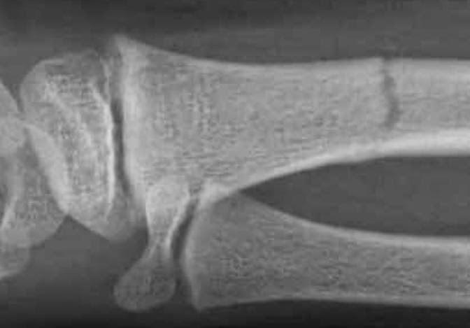 un médecin du sport vous informe Les fractures de lenfant ~ Fracture Bois Vert Poignet