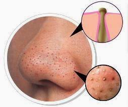 وصفات طبيعية لمعالجة الرؤوس السوداء في بشرة الوجه