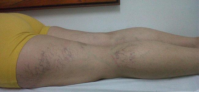 La várice en los pies el tratamiento por el propóleos