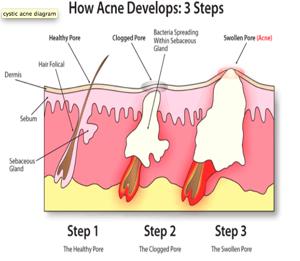 Holistic Way Of Life Getting Rid Of Acne Naturally