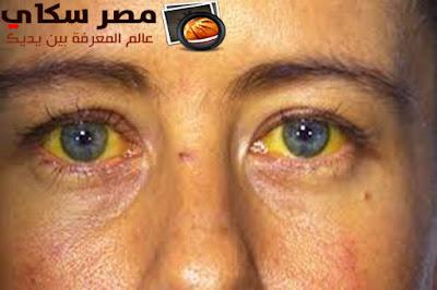 إصفرار العين وأسبابها Yellowing of the eye and causes