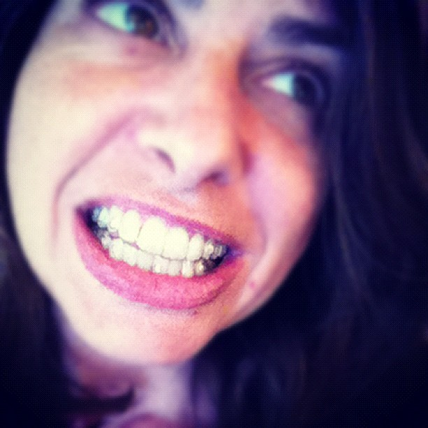 Embracing the Absurd: Invisalign and Eating