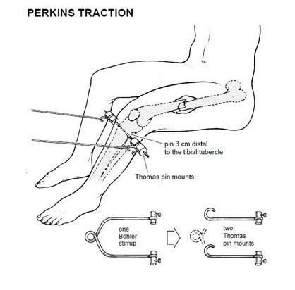 11:50: TRACCIÓN DE PERKINS