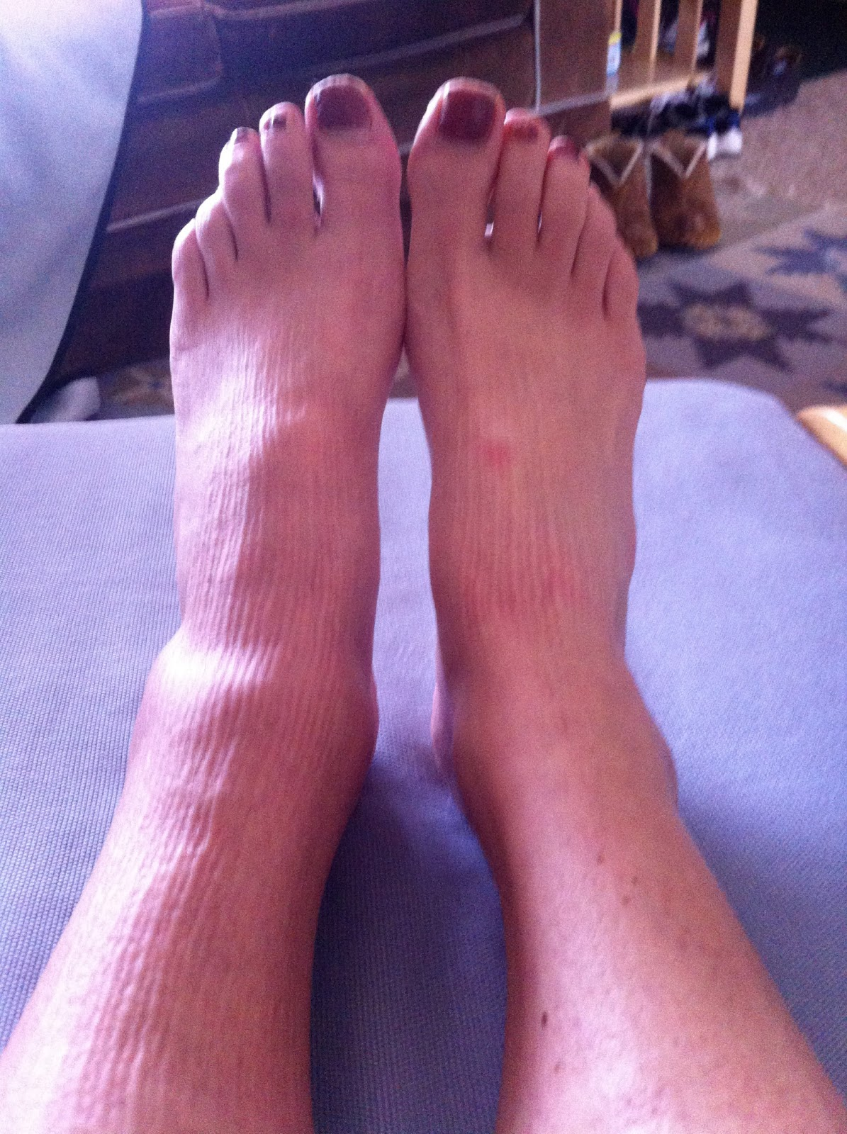 lovely lump on left ankle-2.bp.blogspot.com