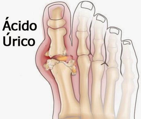 gota dedo gordo pie el pulpo para el acido urico gota horada la piedra