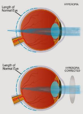http://2.bp.blogspot.com/-WZaPZ8cMbGI/Ur0iIpQq44I/AAAAAAAAAEc/nwBpjoVLenM/s320/hyperopia.jpg