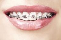 Aparat ortodontyczny - tak czy nie ?