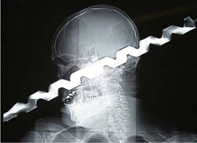 Weird X-Rays