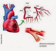 Obat Herbal Jantung Rematik