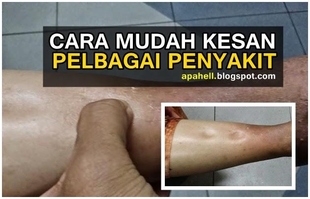 Cara Mudah Kesan Pelbagai Penyakit (4 Gambar)