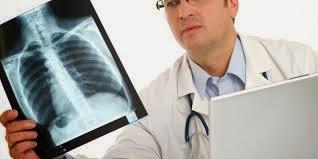 informasi dan gejala kanker paru-paru