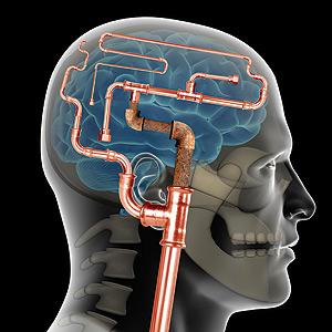 Brain Attack5