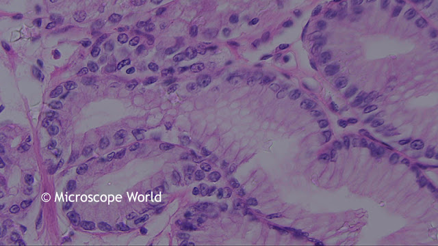 Colon polyp under the microscope at 400x.