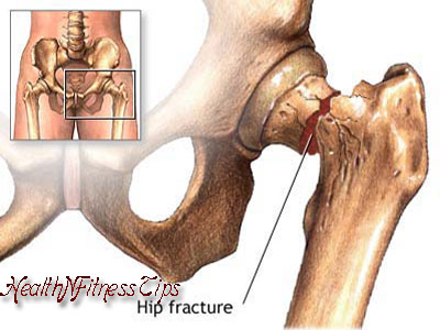Healthy Tips at Risk for Hip Fracture