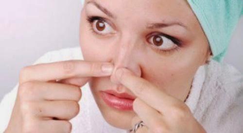 cara mengatasi komedo di hidung