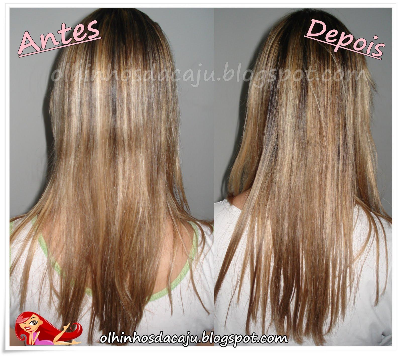 O que aconselhará em uma perda do cabelo em homens