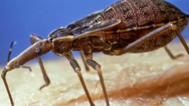 300,000 people in U.S. have Chagas disease as country unsure how to deal with growing threat