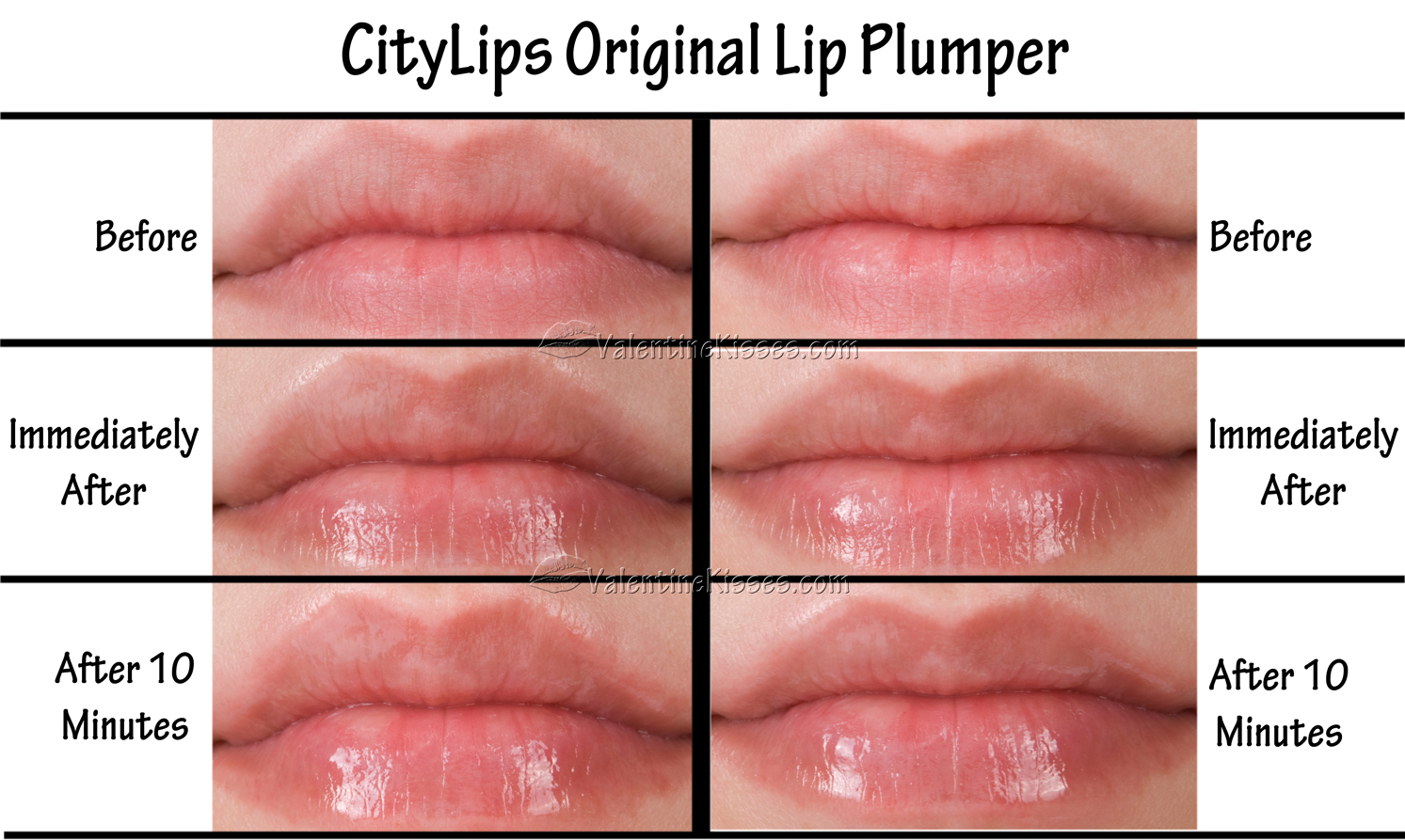 What is City Lips?