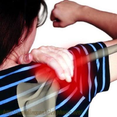 Viêm khớp thường gây ra các cơn đau nhức khớp xương (ảnh minh họa)