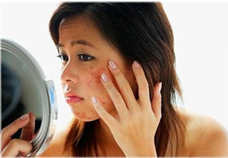 What Causes Pimples? - 3 Causes of Pimples