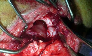 acetabulectomia bilateral