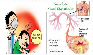 http://saysoeshson.blogspot.com/2015/03/pengobatan-alami-bronkitis-kronis.html