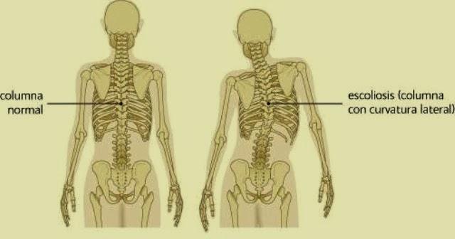 Anormalidades en la columna