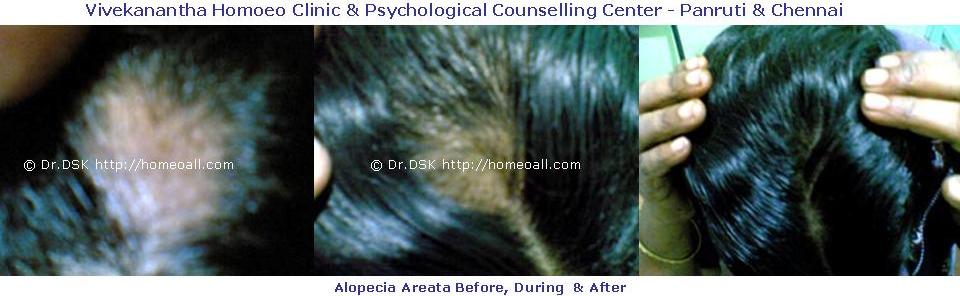 Alopecia Areata Before and After Treatment