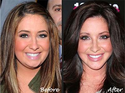 bristol palin plastic surgery