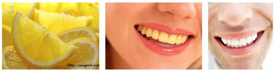 Cara Memutihkan Gigi Kuning Cepat dan Mudah