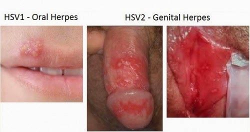 Herpes Simplex Picture - Herpes Pictures