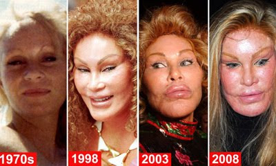 WORST COSMETIC OR PLASTIC SURGERY DISASTERS