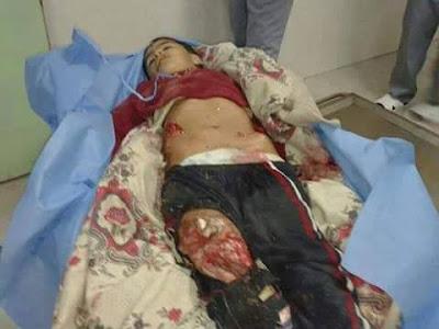 نأسف لجرح شعور العرب/ الحرب المقدسة على أطفال خدج في مشفى الفلوجة بالصور
