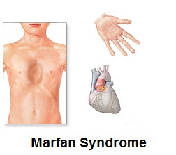 Marfan Syndrome Signs, Symptoms And Treatment