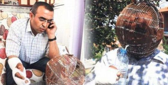 هل تعرف لماذا يضع هذا الرجل التركي قفص حديدي على راسه !!!!.... صدمة و دهشة لمن يعرف السبب !!!!!....