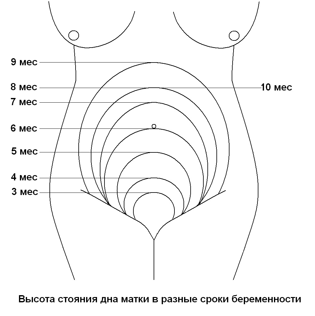 Наличие родов в анамнезе
