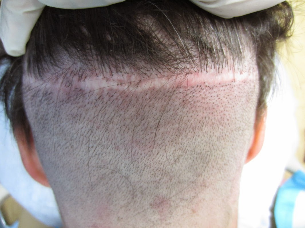 Hair Transplant Surgery Due to FUT