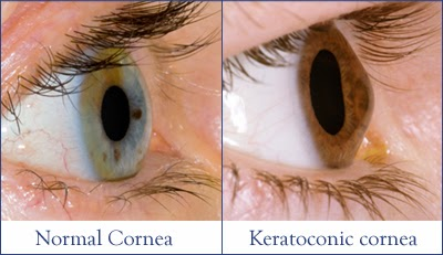 Keratoconus-Treatment-in-Delhi