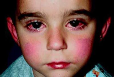 Sindrom kawasaki berefek kulit memerah